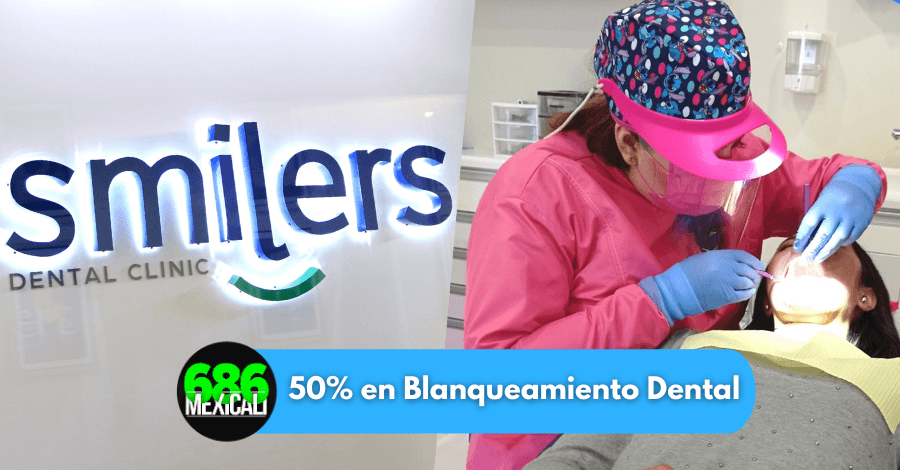 blanqueamiento dental mexicali 2